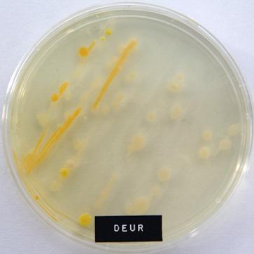 Deur microben